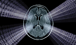 Brain mri image Royalty Free Stock Image