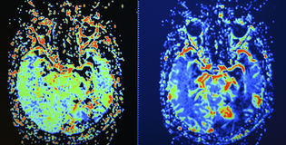 Brain MRI perfusion scan Stock Image