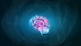 Brain pain stock video footage