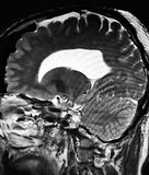 Brain pathology pineal cyst mri exam. There is pineal cyst , which is brain pathology , was reaveled by MRI exam , some endocrinological problems can be Stock Photo