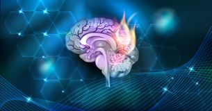 Brain disease. Brain problems abstract burning design on a beautiful dark background Royalty Free Stock Photo