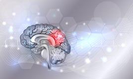 Brain problems. Human brain problems light grey glowing background, beautiful bright illustration detailed anatomy royalty free illustration