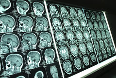 Brain x-ray001. Multiple brain mri scan image Stock Photography