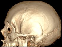 Brain sagital 3D CT Stock Photography