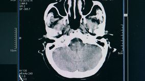 Brain scan, close up. A scanning picture of a patient`s brain. A scanning picture of a patient`s brain stock video footage