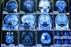 Brain scan images Royalty Free Stock Photos