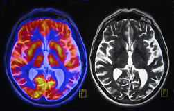 Brain scan. On the left side is fused PET (positron emission tomography) and MRI image. PET represents metabolism of the brain and MRI - morphology