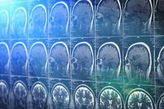 Brain scan, MRI or X-Ray. Neurology tomography concept. Blue light effect, toned Stock Image