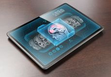 Brain scan stock photos