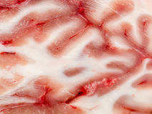 Brain Section. Very Detailed Macro Photo Of A Brain Section Showing White Matter And Blood Vessels Stock Photos