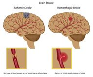 Brain stroke. Two types of brain stroke and causes, eps8 Stock Photography