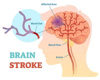 Brain Stroke anatomical vector illustration diagram, scheme