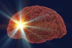 Brain stroke concept. Migraine and headache conceptual image, 3D illustration Royalty Free Stock Photos