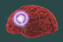 Brain stroke concept. Migraine and headache conceptual image, 3D illustration royalty free stock image