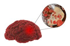 Brain stroke concept. Ischemic brain stroke concept, 3D illustration showing human brain and close-up view of blood vessel obturated with cholesterol plaque Royalty Free Stock Image