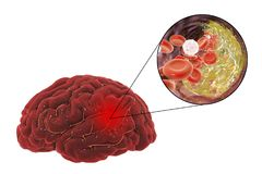 Brain stroke concept. Ischemic brain stroke treatment and prevention concept, 3D illustration showing human brain and close-up view of destruction of cholesterol Royalty Free Stock Photography