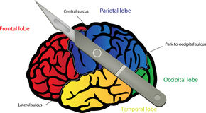 Brain Surgery. A diagram showing the brain undergoing surgery Stock Image