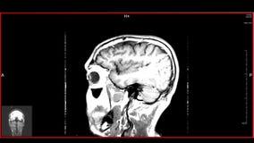 Brain top MRT scan stock video footage