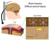 Brain trauma with axon shear. As happened in car accident, shaken baby syndrome,.., eps8 Royalty Free Stock Images
