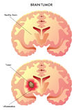 Brain tumor. Medical illustration of the effects of the brain tumor Royalty Free Stock Images