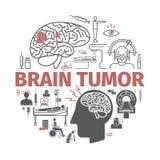 Brain Tumor Cancer baner tecken Vektortecken vektor illustrationer
