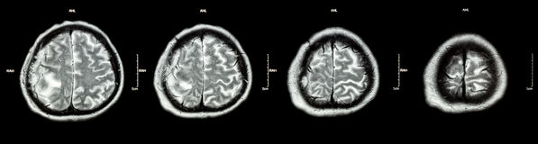 Brain tumor  ( Film CT-scan of brain : show part of brain with tumor ) Stock Photos