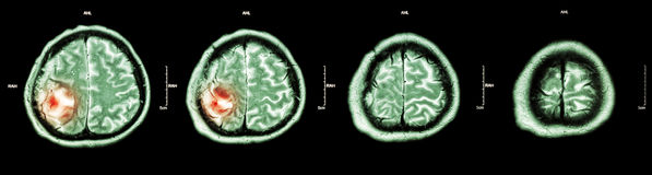 Brain tumor  ( Film CT-scan of brain : show part of brain with tumor ) Stock Images
