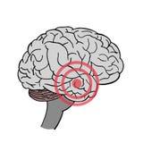 Brain in vector. Headache. Place of pain in brain.  stock illustration