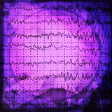 Brain wave on electroencephalogram EEG for epilepsy Stock Images