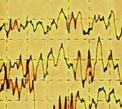 Brain wave on electroencephalogram EEG for epilepsy Royalty Free Stock Photos