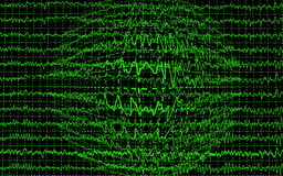 Brain wave encephalogramme EEG Royalty Free Stock Photo