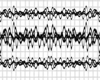 Brain waves. On a solid white background Royalty Free Stock Photography