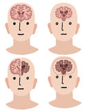 Brains of Dementia and Healthy man Royalty Free Stock Image