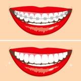 Brakets微笑 向量例证
