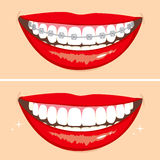 Brakets Smile Stock Images