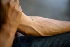Bras complètement des tendons Images stock