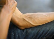 Bras complètement des tendons Photos stock