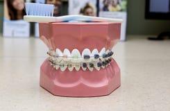Brasy dla zębów Zdjęcia Stock