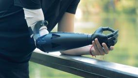 Brazo artificial moderno en una persona discapacitada Concepto futurista 4K metrajes