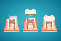 Breaking teeth. On blue background Royalty Free Stock Image