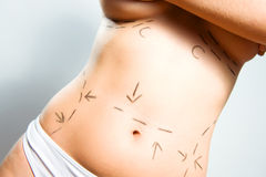 Breast augmentation and abdominal surgeries Stock Photos