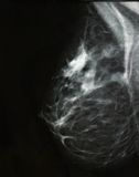 Breast cancer. Digital mammography image, screening for breast cancer, radiology stock images