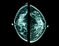 Breast cancer, mammography Stock Photos