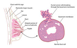 Breast Cancer. Illustration of the human female breast in cross section and detail of ductal carcinoma Stock Images