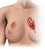 Breast cancer. Shifts in women's breast lobules Stock Images