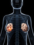 Breast cancer. 3d rendered illustration of breast cancer Stock Image