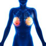 Breast Cancer - Female Anatomy - isolated on white Stock Photos