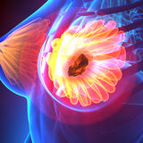 Breast Cancer - Female Anatomy - pain concept Stock Images