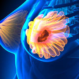 Breast Cancer - Female Anatomy - tumor highlight Stock Image