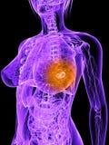 Breast cancer illustration Stock Images